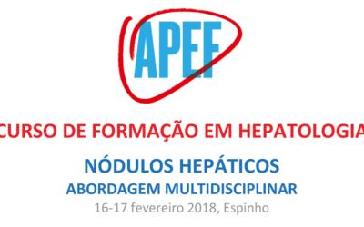 Curso de Formação em Hepatologia: Nódulos hepáticos – abordagem multidisciplinar