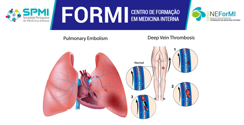 Curso Tromboembolismo Venoso e Ecodoppler Venoso dos Membros Inferiores - Abertas as Inscrições