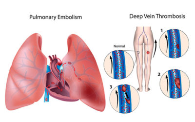 Curso Tromboembolismo Venoso e Ecodoppler Venoso dos Membros Inferiores – Abertas as Inscrições