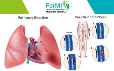 2ª edição do Curso de Tromboembolismo Venoso e Ecodoppler Venoso dos Membros Inferiores – Abertas as Inscrições
