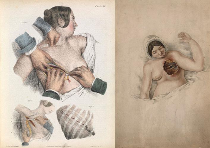 """""""A primeira mastectomia"""", """"Mulher sofrendo de cancro da mama"""", """"Transplante facial"""", """"Cirurgia plástica pelo cirurgião Archibald Mcindoe"""""""