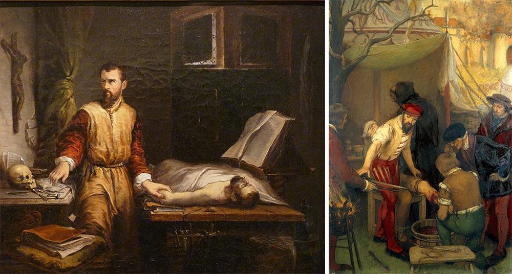 """""""Ambroise Paré a examinar um doente"""", """"Ambroise Paré"""""""