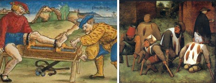"""""""Tratamento de uma fratura óssea"""", """"Os aleijados"""", """"Tratamento de escoliose"""", """"Hippocratic Ladder"""", """"Slone Manuscript"""""""