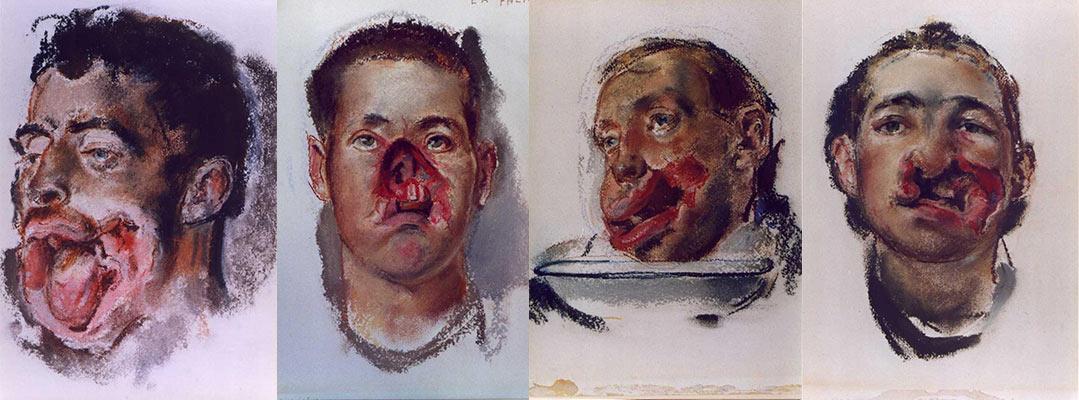 """""""Faces de traumatizados de guerra"""", """"Hospital para traumatizados da face"""", """"Intervenção cirúrgica"""" e """"Bloco operatório"""""""